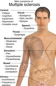 sclerosi