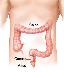 Le Fibre Non Prevengono Il Cancro Al Colon Almeno Nelle