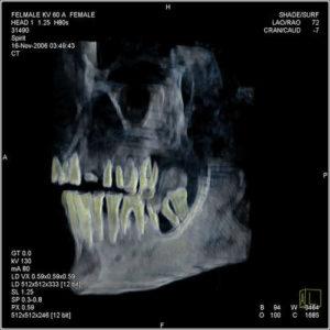 hatshepsut-x-ray